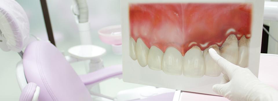 歯ぐきの状態チェック