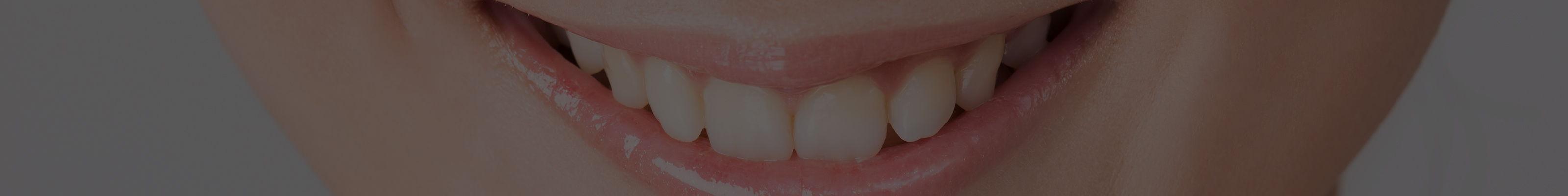 歯をメンテナンスしたい